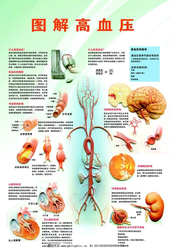 图解高血压 图解 高血压 血管 大脑 治疗 医院 医疗 psd分层 绿色