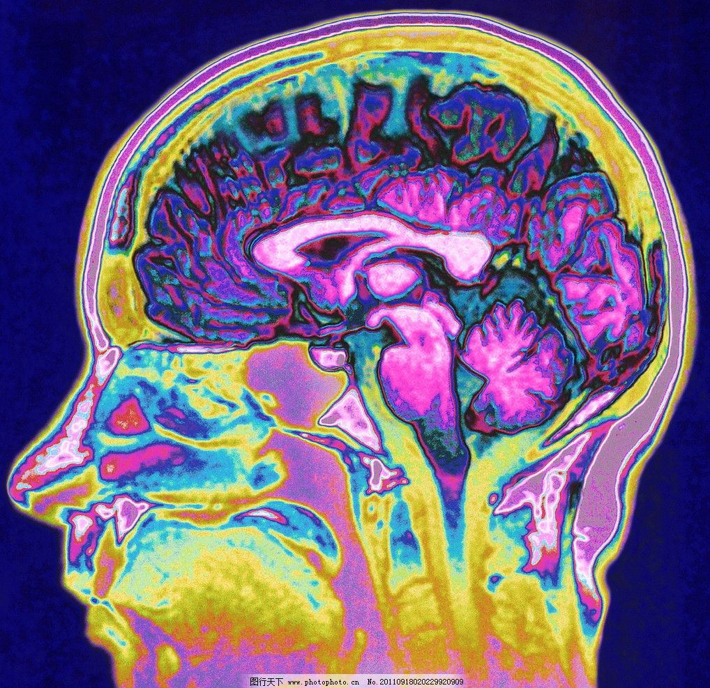 脑部构造图片